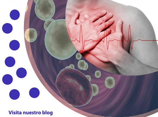 blog de colesterol, terapeutico biofeedback, Quantum balance, medicina cuántica, SCIO y EDUCTOR QUEX S, QUEX ED, blog terapeutico biofeedback scio, blog terapeutico
